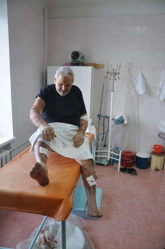 Володимир Варивода більше місяця ще буде у лікарні. Фото Ірини Патлатюк