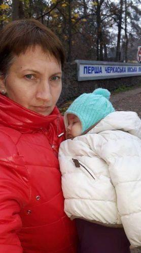 На Черкащині семимісячна дитина отримала тяжкі опіки