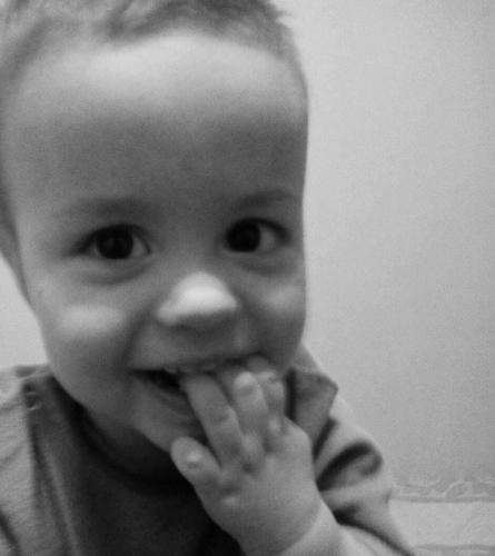 На Черкащині збирають кошти на лікування дворічного хлопчика