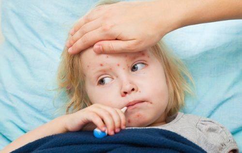 У Черкасах понад 20 осіб за останній тиждень захворіли на кір
