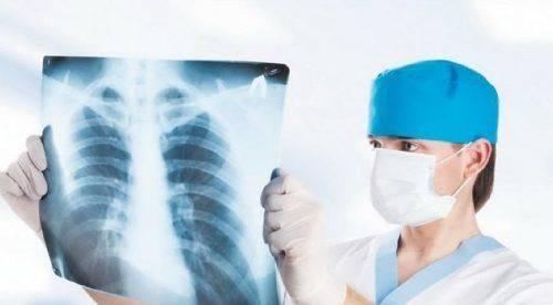 Сьогодні черкасці зможуть безкоштовно перевіритися на туберкульоз