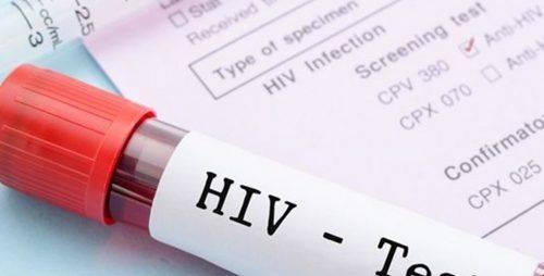 На Черкащині активно запроваджується методика швидких тестів на ВІЛ