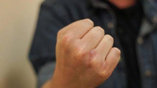 Через п'яну бійку на Черкащині помер чоловік