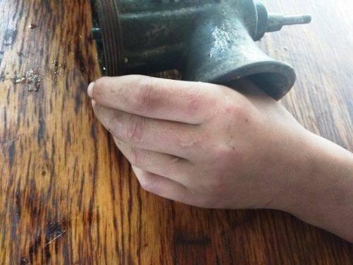 Черкаські рятувальники звільнили палець підлітка, що застряг у м'ясорубці