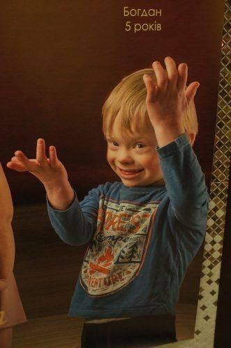 Сонячний хлопчик із Черкас уже два місяці бореться за життя
