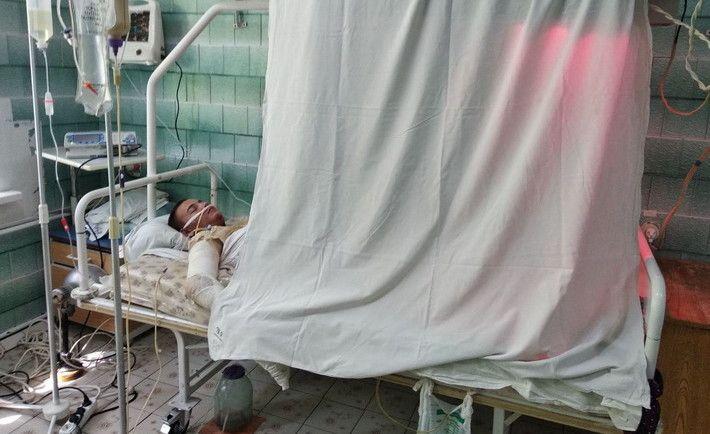 На Черкащині хлопець стрибнув з мосту на вагон і отримав 80 % електротермічних опіків
