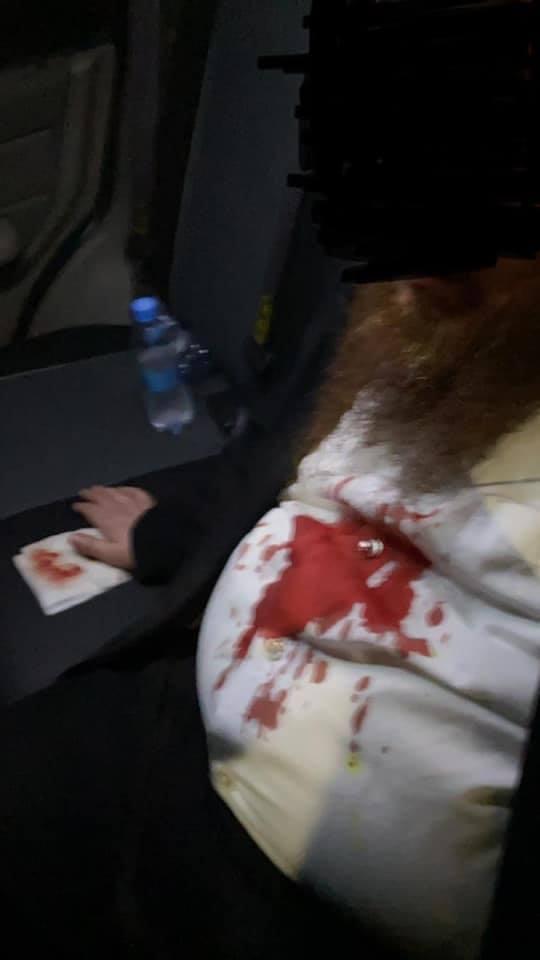 В Умані п'яні підлітки розбили носа хасиду (фото)