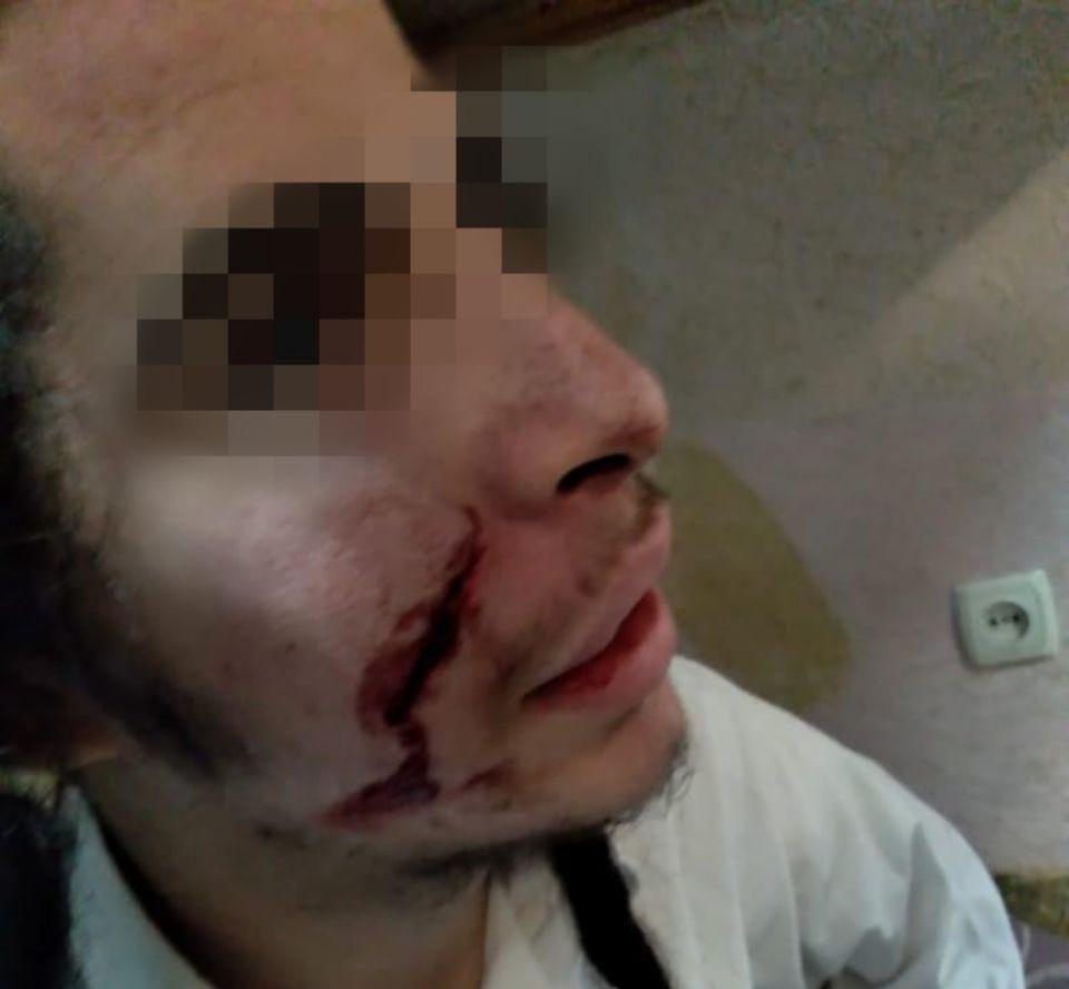 В Умані троє людей з ножем напали на брацлавського хасида